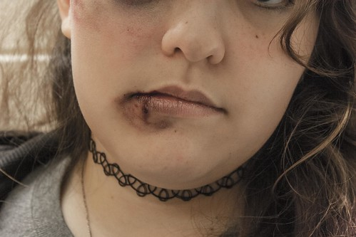 A woman with a bruised lip